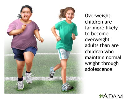 How positive parenting during early childhood may prevent obesity